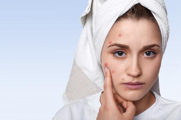 acne huile de chanvre